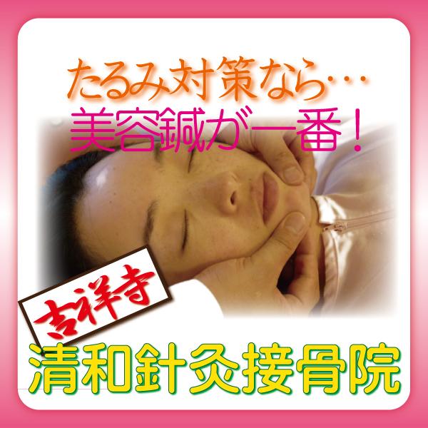 吉祥寺の美容鍼灸なら清和針灸接骨院 GW中のたるみ対策